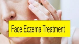 how do you get rid of eczema on face?